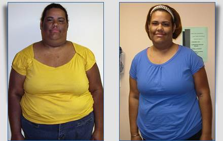 Luisanna Weight Loss Success