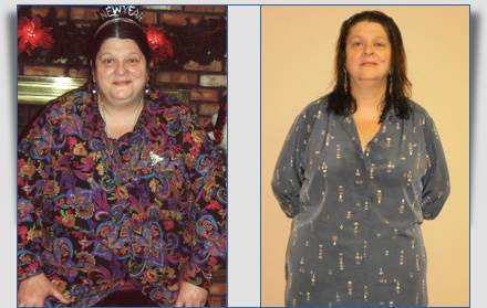 Jane: 90 Pounds Lost