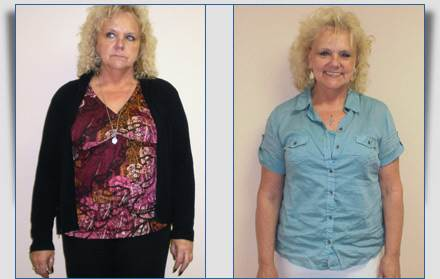 Karen: 30 Pounds Lost