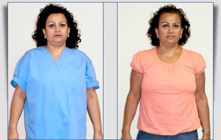 Gloria: Weight Loss Success