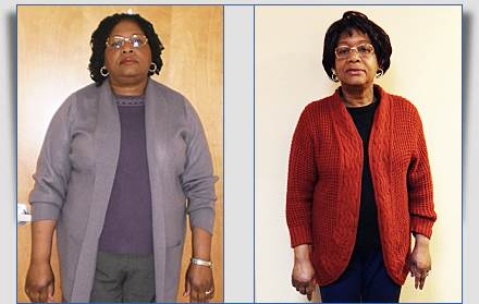 Vera Weight Loss Success